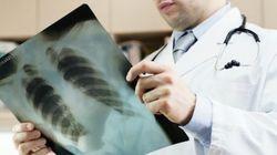 Investigadores españoles descubren un tratamiento que reduce el cáncer de pulmón en un 80% de