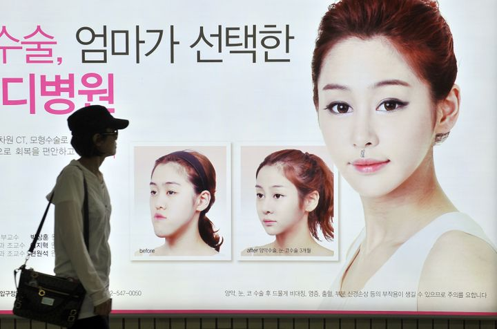 A South Korean woman walks past a street billboard advertising double jaw surgery at a subway station in Seoul, South Korea.