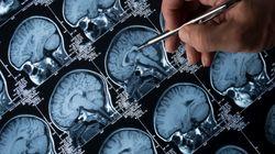 De las migrañas al cáncer: Inteligencia artificial para diagnosticar
