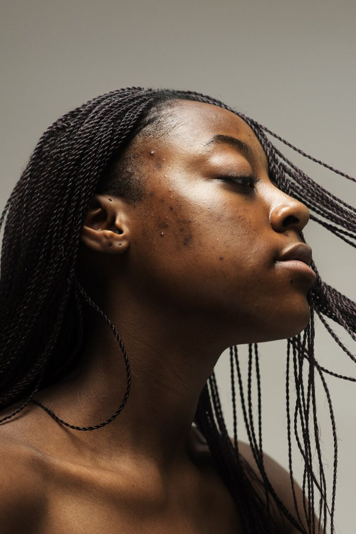 Sophie Harris-Taylor created a photography series that highlights faces with skin conditions such as acne, rosacea and eczema