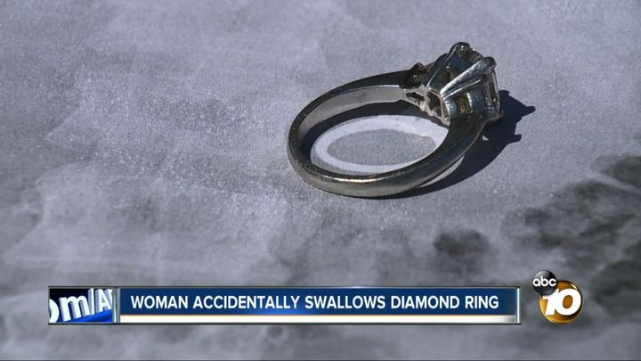 This diamond engagement ring was removed from a California woman's stomach last week after she said she swallowed it while sl