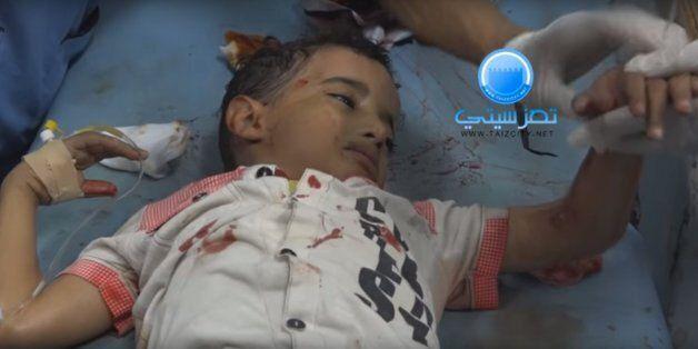 내전 중인 예멘 소년이 자신을 치료하려는 의료진에게
