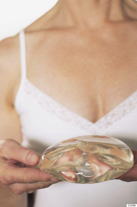 가슴성형 부작용도 노동력 상실로 배상받을 수