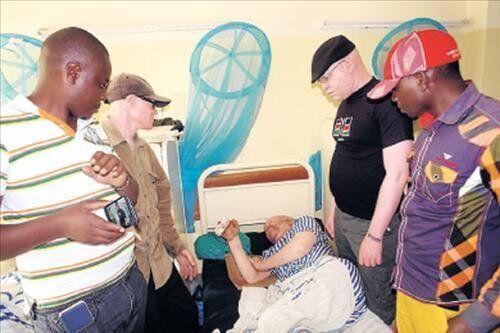 케냐서 백색증 환자 신체 절단