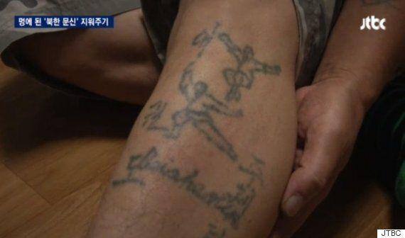 '북한표 문신'을 공짜로 지워주는 성형외과