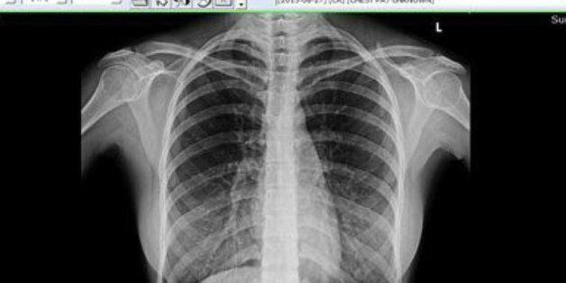 유승옥은 왜 흉부 CT 사진을 인증해야