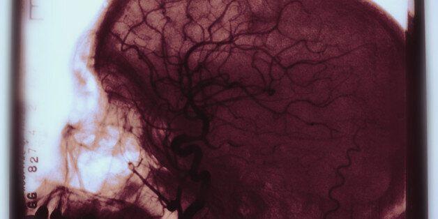 당뇨병이 뇌에도 치명적이라는 첫 연구결과가