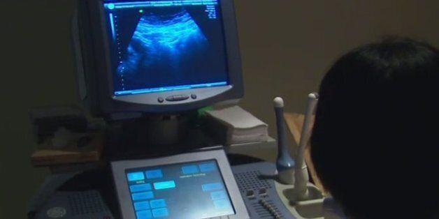 만삭 임신부, 메르스 첫 확진