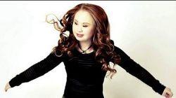 패션모델이 되고 싶은 18세 다운증후군 소녀