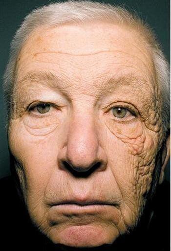 이 남자의 왼쪽 얼굴이 오른쪽 얼굴보다 늙은