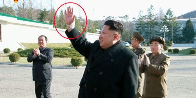 북한 김정은, 이번엔 오른 손목