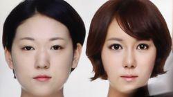 '비포&애프터' 성형광고 금지, 의사 실명제