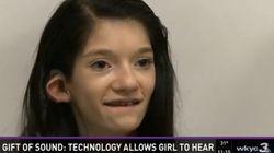 청각장애 소녀가 난생 처음 '소리'를 듣는 순간