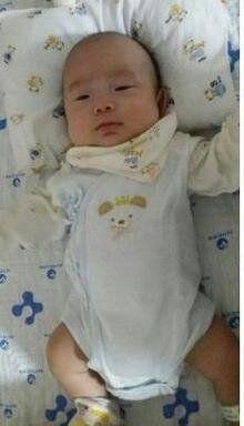 26주 짧은 생, 850g 아기 '믿음이'의