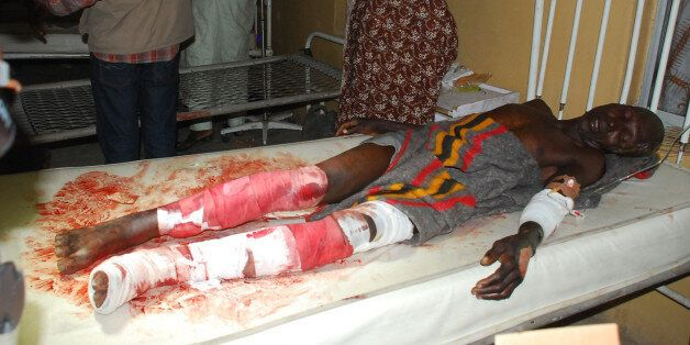 A victim of a suicide bomb attack at a market receives treatment at a specialist hospital in Maiduguri,...