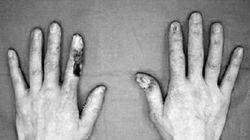 장기간 방사선 노출로 의사 손가락