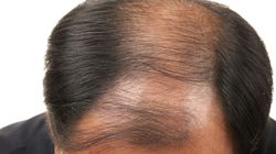류머티즘 관절염 치료제로 전신탈모