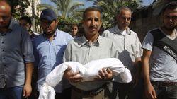 두돌도 안 된 아기의 몸이 폭탄에