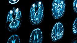고가의 방사능 검진 받을수록 암 발병 위험