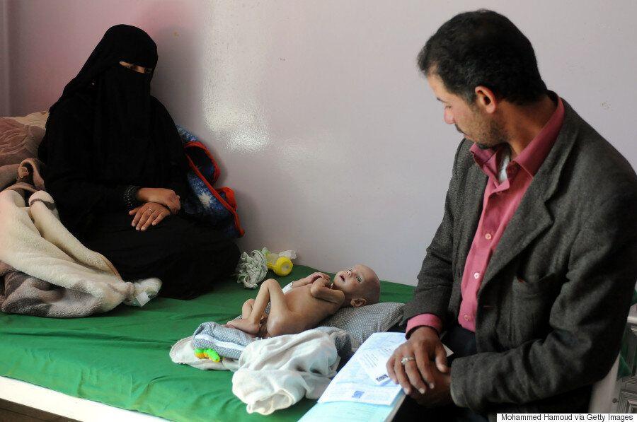 Πώς ξεκίνησε ο πόλεμος στην Υεμένη. Η ανθρωπιστική κρίση, οι θάνατοι, η πείνα και η