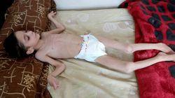 ΟΗΕ: Οι πολιορκημένοι Σύριοι τρώνε σκουπίδια και λιποθυμούν από την
