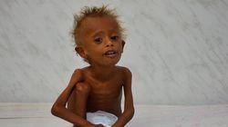 Θα γίνουμε μάρτυρες του μεγαλύτερου λιμού. Προειδοποίηση ΟΗΕ για Υεμένη και τον αποκλεισμό της από τη