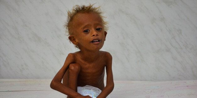 Salem Abdullah Musabih, 6, sits on a bed at a malnutrition intensive care unit at a hospital in the Red...