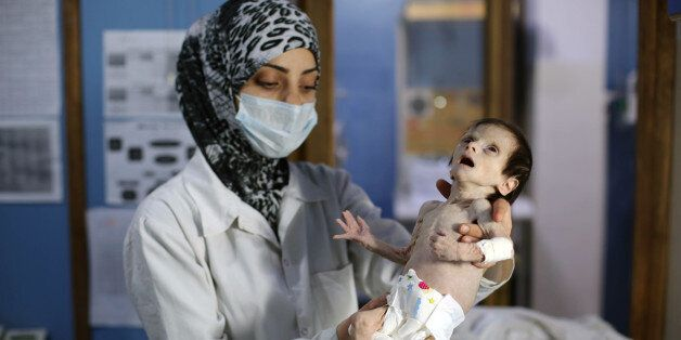 A Syrian infant suffering from severe malnutrition is carried by a nurse at a clinic in the rebel-controlled...