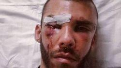 Γάλλοι οι δράστες της επίθεσης σε 30χρονο φοιτητή στο Ρέθυμνο, σύμφωνα με την