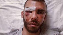 Μαρτυρία φοιτητή που ξυλοκοπήθηκε στο Ρέθυμνο: Μου έριχναν κλοτσιές και μπουνιές στο