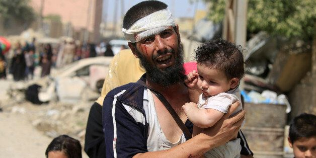 ATTENTION EDITORS - VISUAL COVERAGE OF SCENES OF INJURY OR DEATH A wounded displaced Iraqi man who fled...