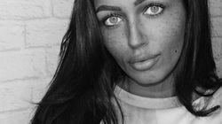 Μοντέλο του Instagram εκδήλωσε μια σπάνια νόσο, χαϊδεύοντας ένα