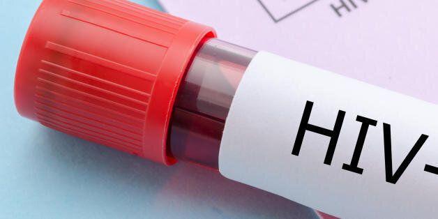 Το προσδόκιμο ζωής φορέων του HIV έχει αυξηθεί κατά 10 χρόνια χάρη στα νέα