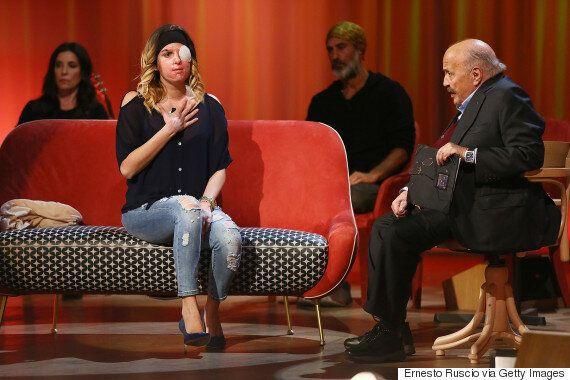 Ιταλίδα μοντέλο αποκαλύπτει στην κάμερα το πρόσωπό της μετά την επίθεση με οξύ που δέχθηκε από τον πρώην...