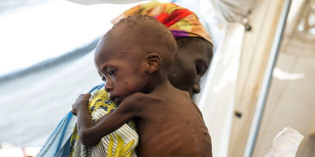 WAU SHILUK, SOUTH SUDAN - MAY 10: Doctors Without Borders screens and treats malnourished children living...