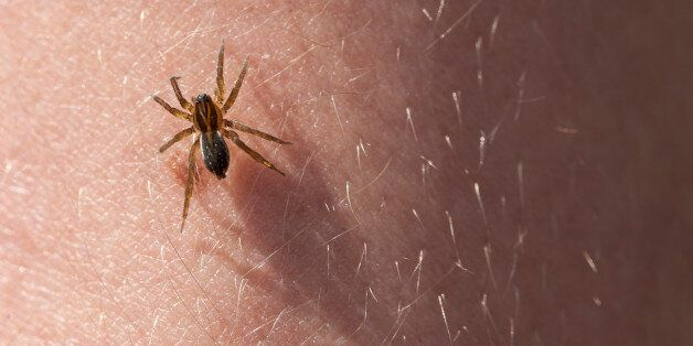 Frightening spider on the hairy skin of