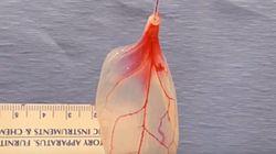 Βίντεο: Επιστήμονες μετέτρεψαν σπανάκι σε ανθρώπινο καρδιακό
