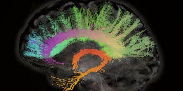 Καναδοί επιστήμονες υποστηρίζουν ότι ο εγκεφάλος συνεχίζει να λειτουργεί για τουλάχιστον 10 λεπτά μετά...