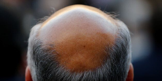 A man with baldness is seen in Seville, southern Spain April 6, 2016. REUTERS/Marcelo del