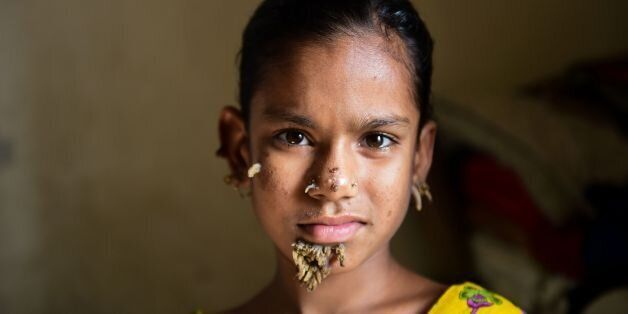 TOPSHOT - In this photograph taken on January 30, 2017, Bangladeshi patient Sahana Khatun, 10, poses...