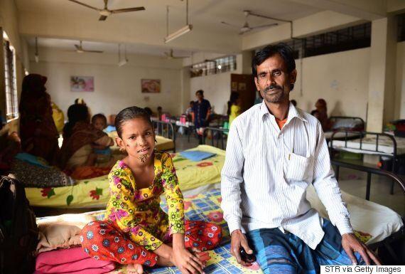 10χρονη από το Μπαγκλαντές ίσως είναι η πρώτη γυναίκα με το σύνδρομο «άνθρωπος