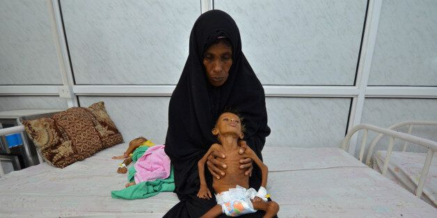 Salem Abdullah Musabih, 6, is held by his mother as she sits on a bed at a malnutrition intensive care...