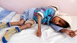 Στα πρόθυρα του λιμού η Υεμένη. Πρώτα θύματα τα
