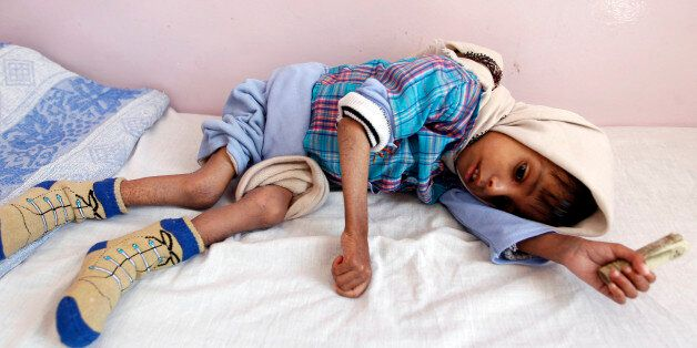 A malnourished Yemeni boy receives treatment at a therapeutic feeding centre in the capital Sanaa on...