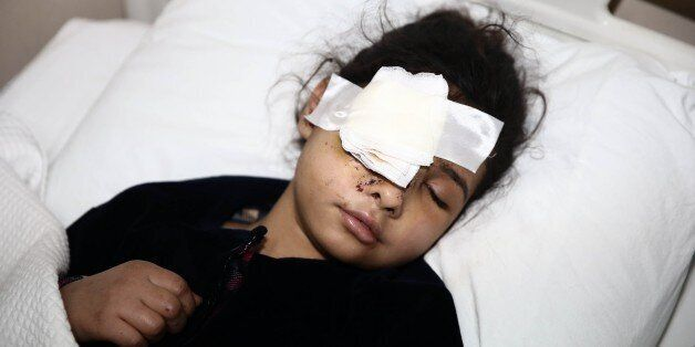 HATAY, TURKEY - DECEMBER 15: A 9-year-old wounded Syrian kid Viyam who lost one of his family member...