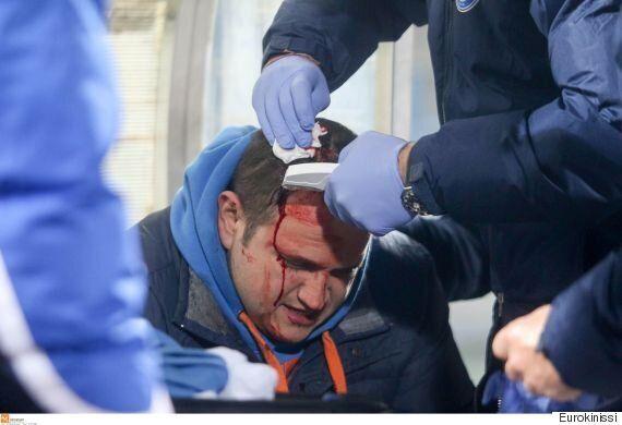 Επεισόδια και τραυματισμός δημοσιογράφου στο