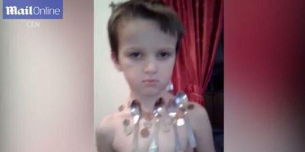 Το πεντάχρονο αγόρι από τη Βοσνία Ερζεγοβίνη που ελκύει τα μεταλλικά αντικείμενα σαν