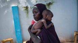 Πέντε στα έξι βρέφη σε αναπτυσσόμενες χώρες υποσιτίζονται, σύμφωνα με στοιχεία του