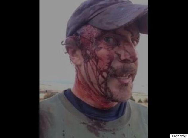 Ένας κυνηγός περιγράφει πώς επιβίωσε από την επίθεση