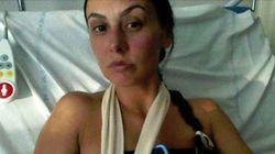 Ο τραυματισμός μιας 37χρονης Γαλλίδας μετά από επίθεση σε δρόμο της Τουλούζης γίνεται viral στο